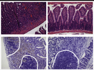 26 Toxoplasma polymorphic