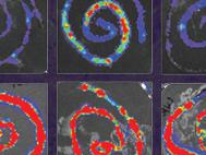 35. Toxoplasma gondii rhoptry 16